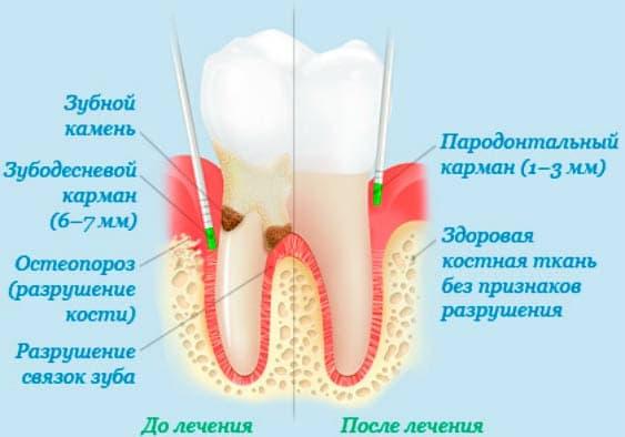 Карман между зубов как лечить в домашних условиях