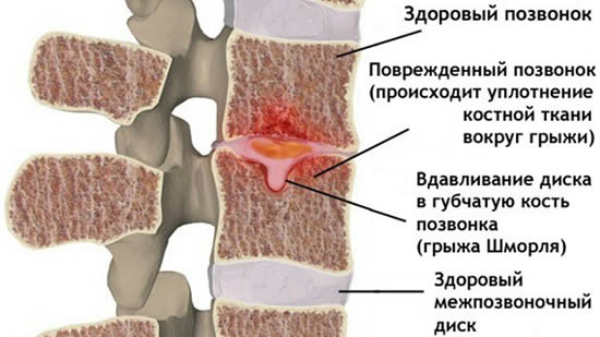 gryzha-shmorlya-poyasnichnogo-otdela-pozvonochnika-lechenie