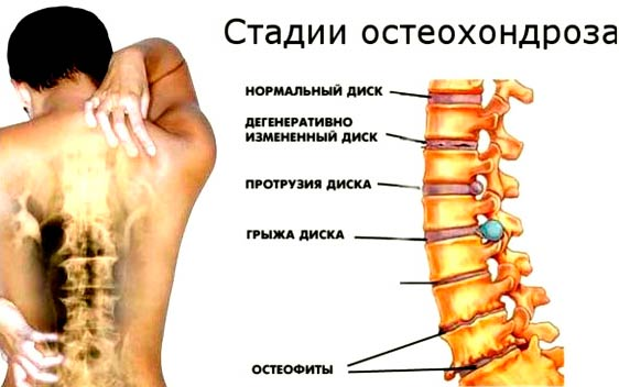 osteohondroz-grudnogo-otdela-pozvonochnika