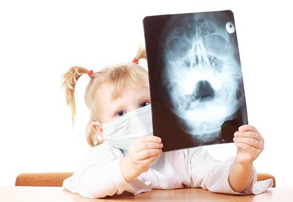 diagnostika-gajmorita-u-detej
