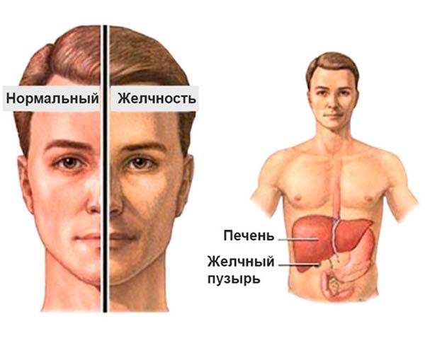 Как снизить билирубин при синдроме жильбера