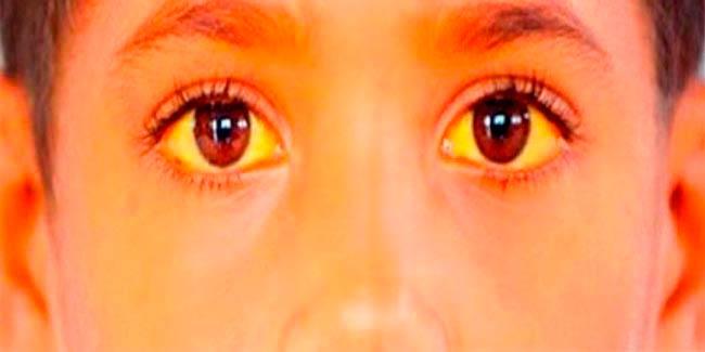 синдром-жильбера-лечение