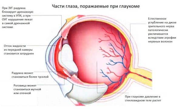 glaukoma-chto-ehto-takoe