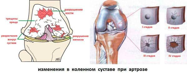 simptomy-artroza-kolennogo-sustava