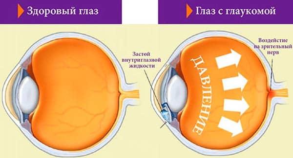 simptomy-glaukomy