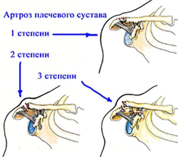 stepeni-artroza-plechevogo-sustava