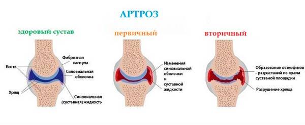 stepeni-artroza