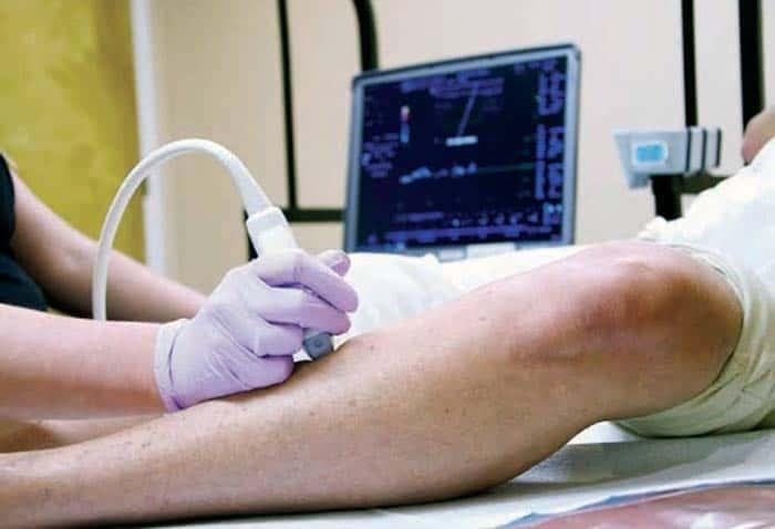 диагностика-варикозного-расширения-вен