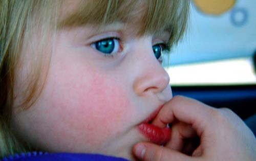 allergicheskij-stomatit-u-rebenka