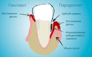 gingivit-i-parodontit
