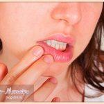 лечение-стоматита-у-взрослых