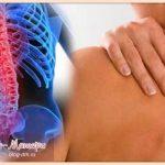 остеохондроз-грудного-отдела-позвоночника