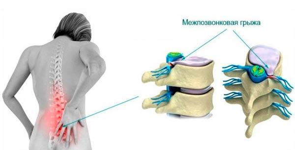 gryzha-poyasnichnogo-otdela-pozvonochnika-simptomy