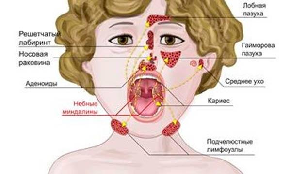 adenoidit-u-detej-simptomy-i-lechenie