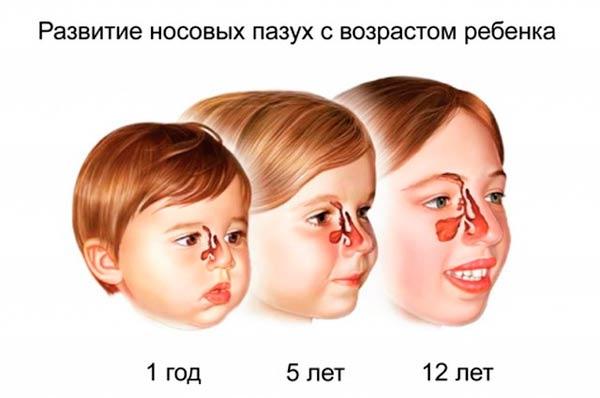 gajmorit-u-detej-simptomy-i-lechenie