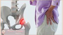 Артроз тазобедренного сустава— симптомы и лечение