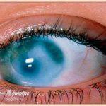 что-такое-глаукома-глаза