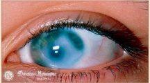 Глаукома глаза— что это такое и как лечить