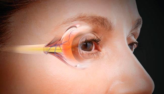 Как лечить глаукому глаза — Все о глаукоме