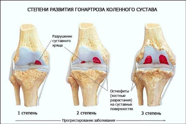 Как вылечить коленный сустав в домашних условиях Суставы