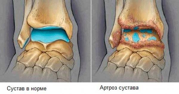 Артроз голеностопного сустава симптомы лечение в домашних условиях