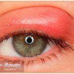 как-лечить-ячмень-на-глазу