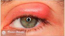 Чем лечить ячмень на глазу в домашних условиях